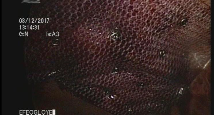 IPOM Hernia Repair